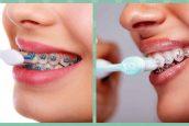 Consejos para el cuidado e higiene de dientes con brackets